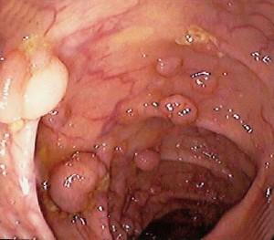 полип на уретре у женщин фото