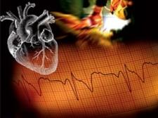 кардиология в санкт петербурге